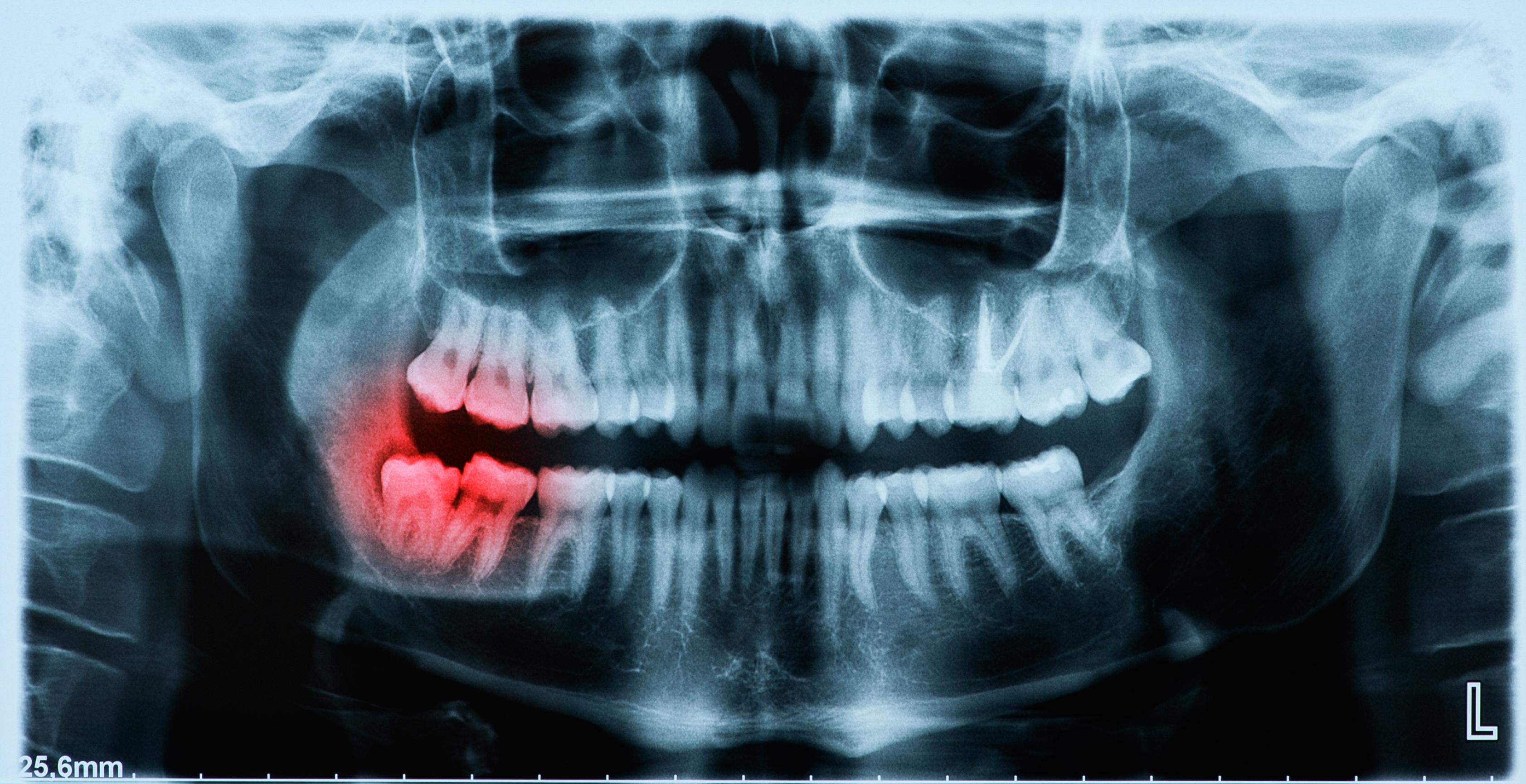 Рентген зубов 97